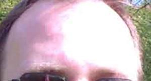 Stirn
